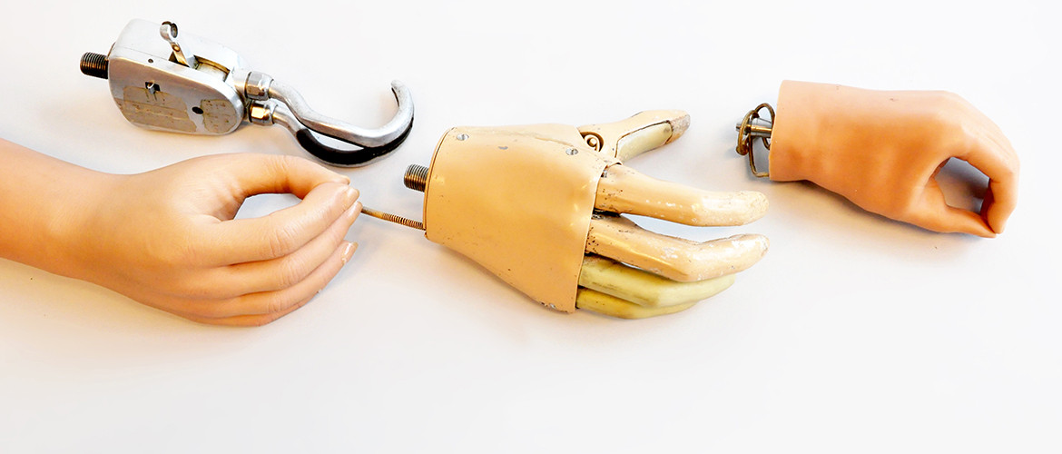 Body-powered hand prostheses